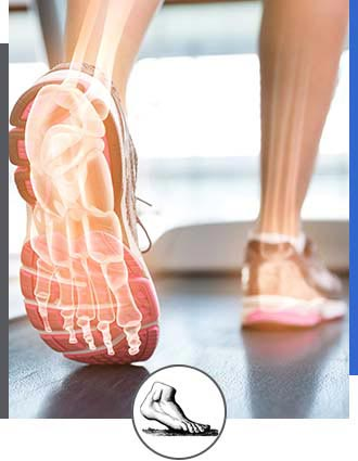 Video Gait Analysis Near Me in Walnut Creek CA - Bay Area Foot and Ankle