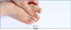 Foot Arthritis Specialists Near Me in Walnut Creek CA and Brentwood CA
