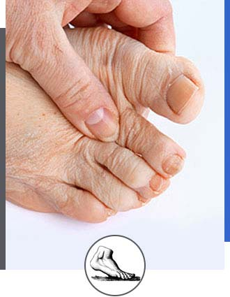 Foot Arthritis Specialist Near Me in Walnut Creek CA - Bay Area Foot and Ankle