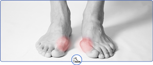 Bunion Specialist and Doctor Near Me in Walnut Creek CA and Brentwood CA