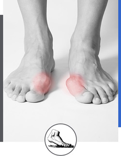Bunion Doctor Near Me in Walnut Creek CA - Bay Area Foot and Ankle