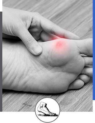 Corns And Calluses Specialist Near Me in Walnut Creek CA - Bay Area Foot and Ankle