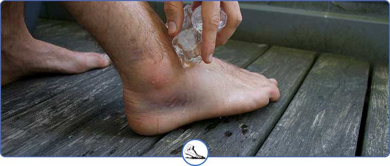 Excessive Supination Treatment Near Me in Walnut Creek CA - Bay Area Foot and Ankle