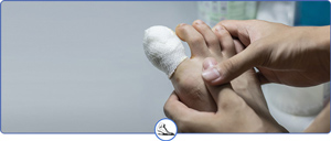 Fractured Toe vs Broken Toe Treatment Near Me in Walnut Creek CA - Bay Area Foot and Ankle