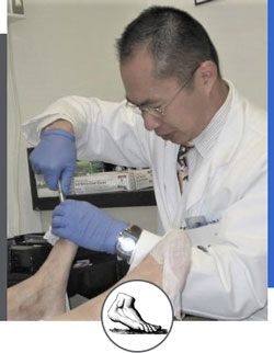 Ingrown Toenail Treatment Near Me in Walnut Creek CA - Bay Area Foot and Ankle