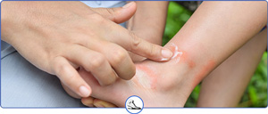 Foot and Ankle Insect Bite Treatment Near Me in Walnut Creek CA and Brentwood CA
