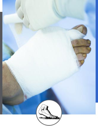 Foot and Ankle Surgery Near Me in Walnut Creek CA - Bay Area Foot and Ankle