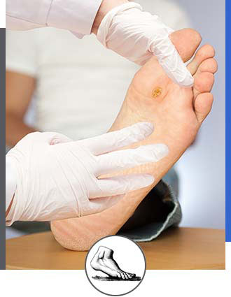 Warts Treatment Near Me in Walnut Creek CA - Bay Area Foot and Ankle