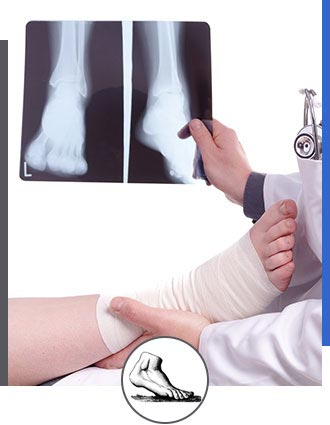 X-Rays Services Near Me in Walnut Creek CA - Bay Area Foot and Ankle