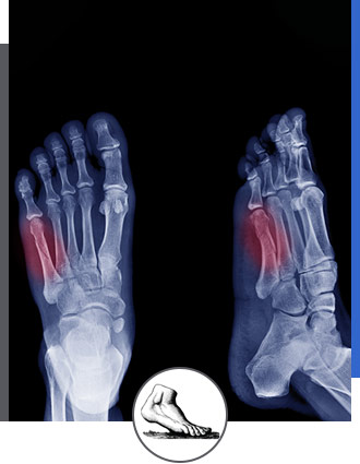 Foot and Ankle Fractures Specialist Near Me in Walnut Creek CA - Bay Area Foot and Ankle